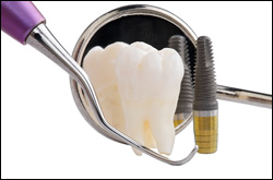 Dental Implants San Leandro & Lafayette, CA